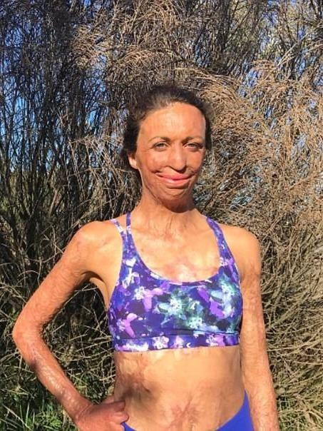 She suffered burns to 65% of her body in 2011. Source: Instagram/turiapitt