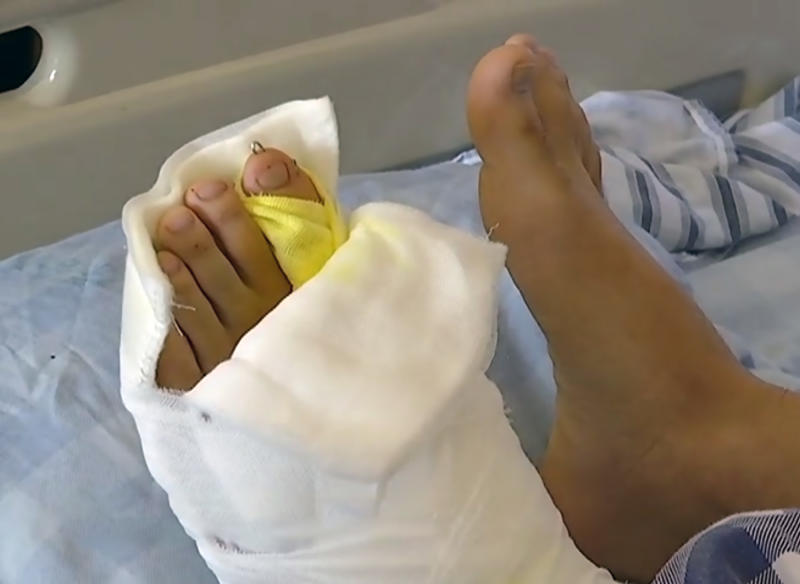 The young man's foot after the surgery. (AsiaWire)