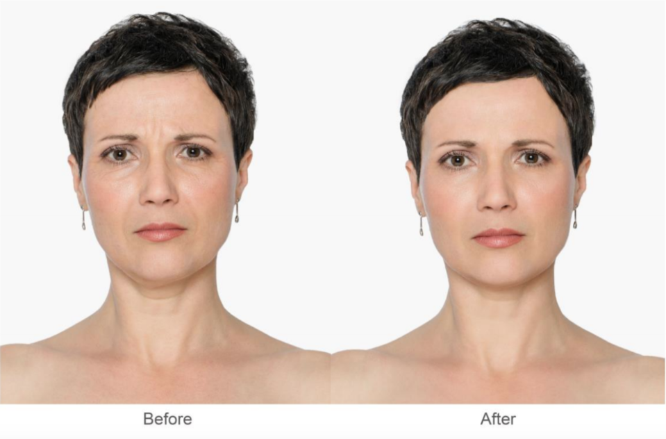 Consumer testing showed visible results after using the serum for one week [Photo: No7]