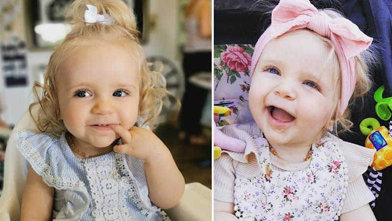 Baby Ashana Simpson was born with two extremely rare disorders.