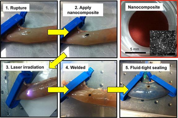 How Lasers and Glue Help Weld Tissue Ruptures