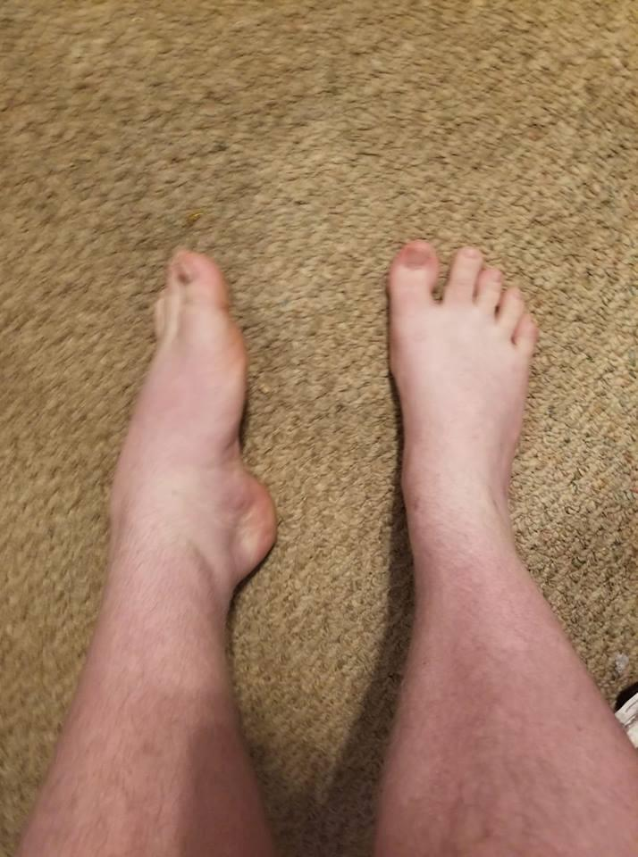 man with rolled ankle due to ehlers-danlos syndrome