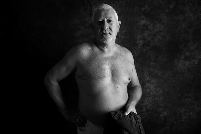 Steve McAllister, 67, from Cardiff, was diagnosed with breast cancer in 2010. <em>[Photo: Ami Barwell/PA Wire]</em>