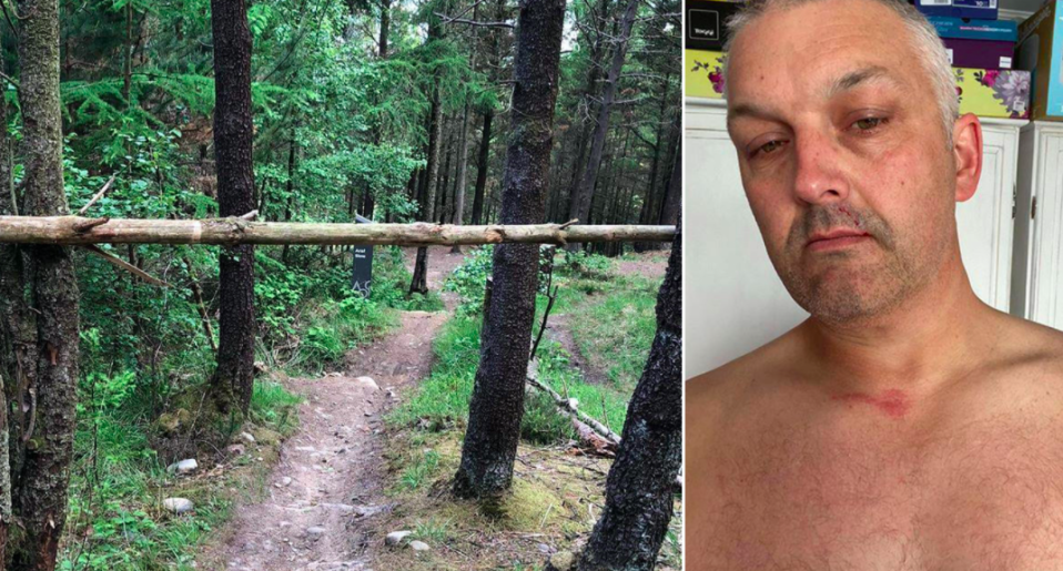 Neil Nunnerley was injured after hitting a barrier stretched across a cycling trail in Wales. (Wales News)