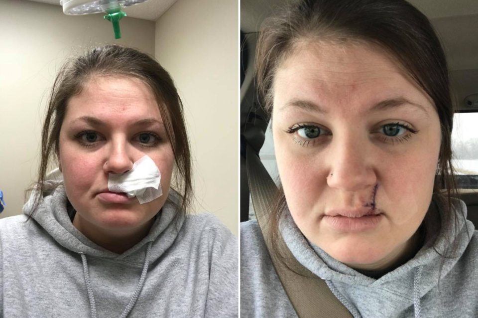 Mallory Lubbock, 26, shares selfies post-skin cancer removal on Facebook. (Photo: Facebook/Mallory Lubbock)