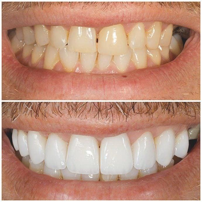 This year, sales manager Paul Rayns got his teeth straightened and whitened, and veneers put on