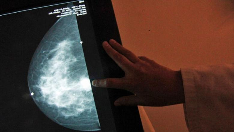 N.L. has highest rates of mastectomies in Canada: researchers want to know why