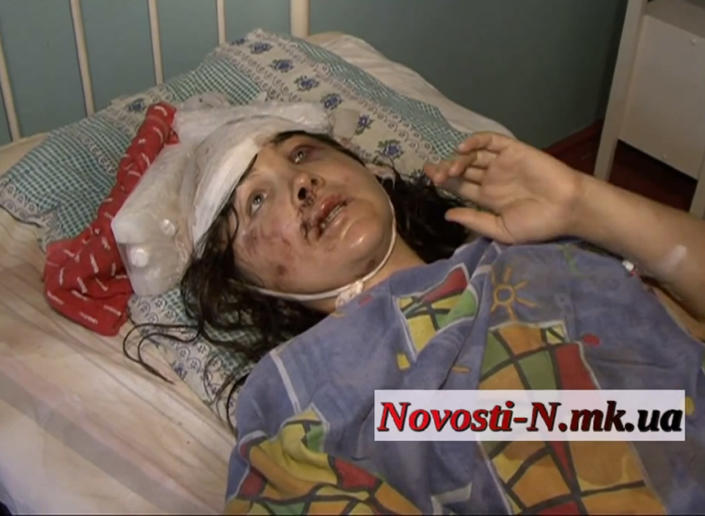In this file photo taken from Novosti- N.mk.ua Nikolayev internet newspaper web site on Tuesday, July 2, 2013, rape victim Irina Krashkova, a 29-year-old woman from the town of Vradiyevka, Ukraine, speaks from a hospital bed. Krashkova says she was driven to the woods, raped and savagely beaten by two local policemen, aided by a driver. One of the policemen and the driver have been detained, but the authorities failure to detain the other alleged perpetrator has led to angry protests and the storming of the police headquarters in Vradiyevka. (AP Photo/ Novosti- N.mk.ua Nikolayev internet newspaper)