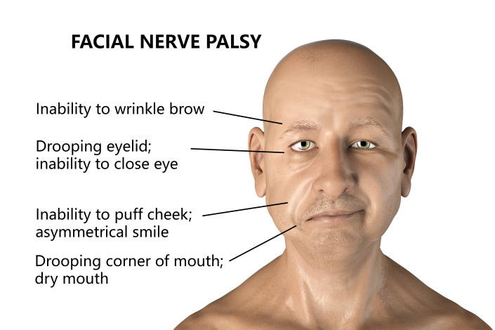 Labelled illustration of Bell's palsy, a unilateral facial paralysis. The condition is due to the inflammation of the facial nerve. It causes facial drooping, numbness, inability to close the eye and may also cause nervous tics. Onset may be overnight. The cause is not known although in some cases it may be due to infection with herpes virus. Treatment is with anti-inflammatory and antiviral drugs. The condition will resolve itself over time.