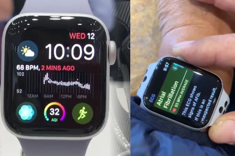 Doctor Saves Life By Detecting Deadly Heart Condition Using an Apple Watch