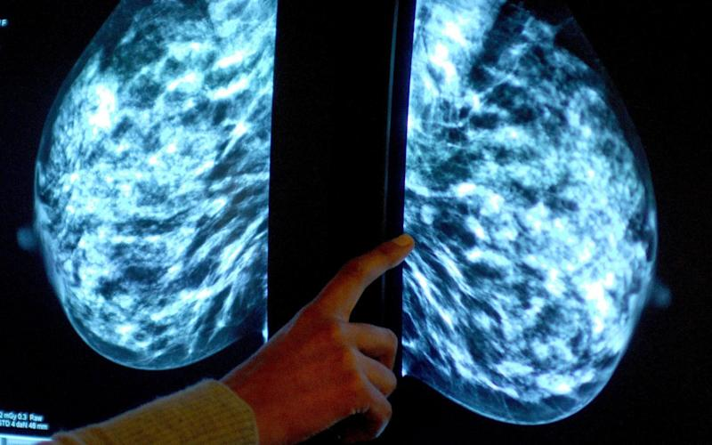 Breast cancer  - Credit: Rui Vieira /PA