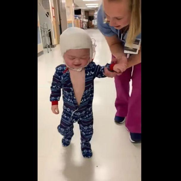 PHOTO: Branson had received a seven-hour procedure in an attempt to correct craniosynostosis--a condition in which joints between the bones of the skull close too early, causing problems with normal brain and skull growth. (Heather Figueroa via Storyful)