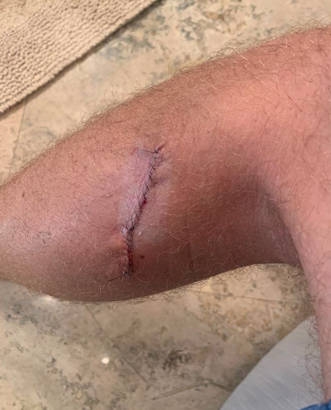 Justin Thomas Reveals Scar From Doctors Catching Early Stages Of Skin Cancer