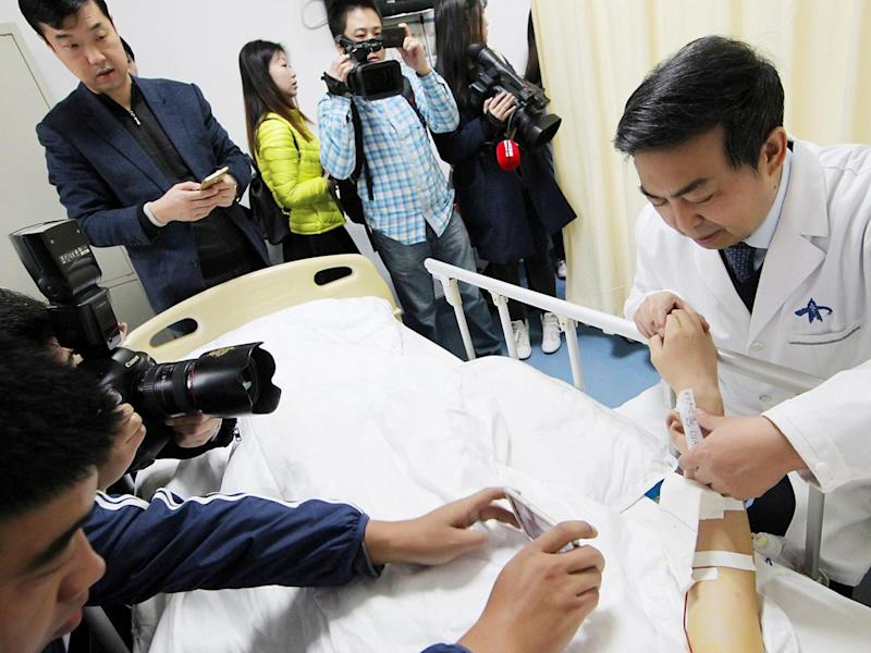 (Reuters) The pioneering operation was performed by renowmed plastic surgeon Dr Guo