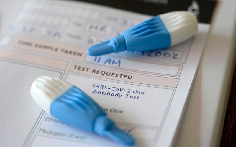 Pathology labs were asked to take part in last-minute efforts to rapidly expand testing - Justin Tallis/AFP