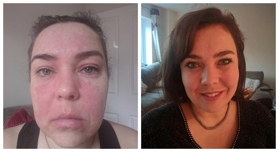 Nearly a year on since using the Medovie cream, Samantha Smith says her skin has cleared up (PA)