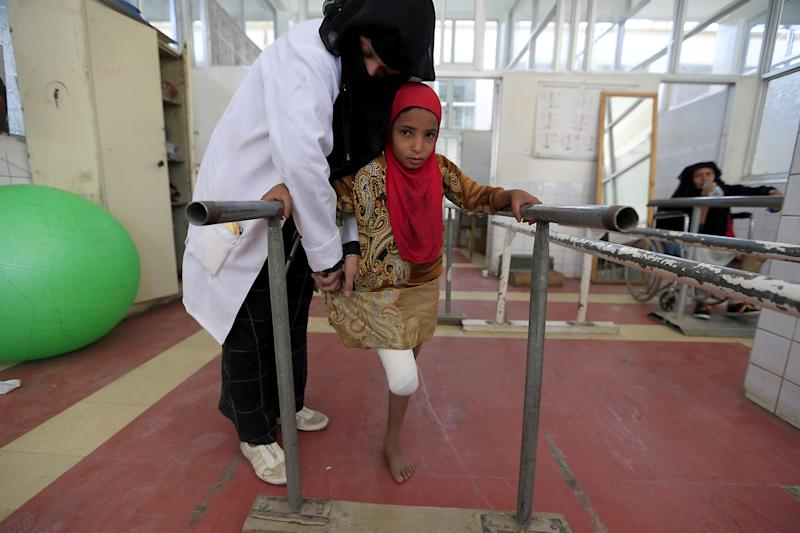 A wounded Yemeni girl exercises at a clinic for prosthetic limbs and physical rehabilitation in the capital Sanaa: Photo by MOHAMMED HUWAIS/AFP via Getty Images