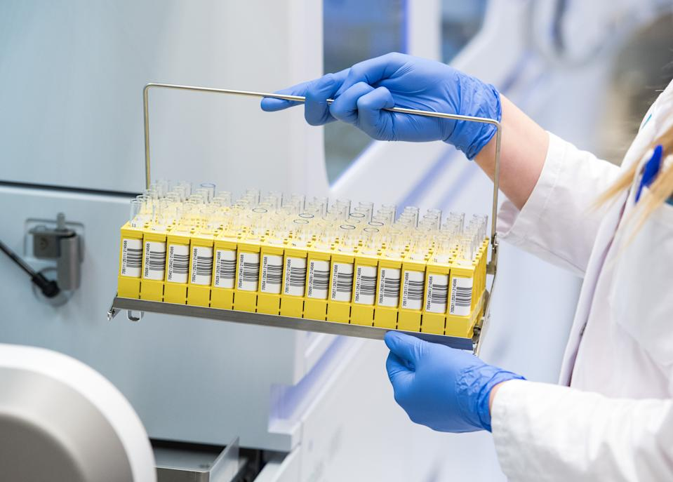 """27 March 2020, Schleswig-Holstein, Geesthacht: A biology laboratory technician from the LADR laboratory network Dr. Kramer and colleagues analyses molecular biological samples for the SARS CoV-2 virus. The laboratory currently evaluates around 1500 corona tests per day. (to dpa """"Laboratory in Geesthacht tests 1500 samples per day"""") Photo: Daniel Bockwoldt/dpa (Photo by Daniel Bockwoldt/picture alliance via Getty Images)"""