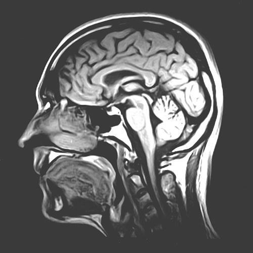 An MRI scan reveals the gross anatomical structure of the human brain.