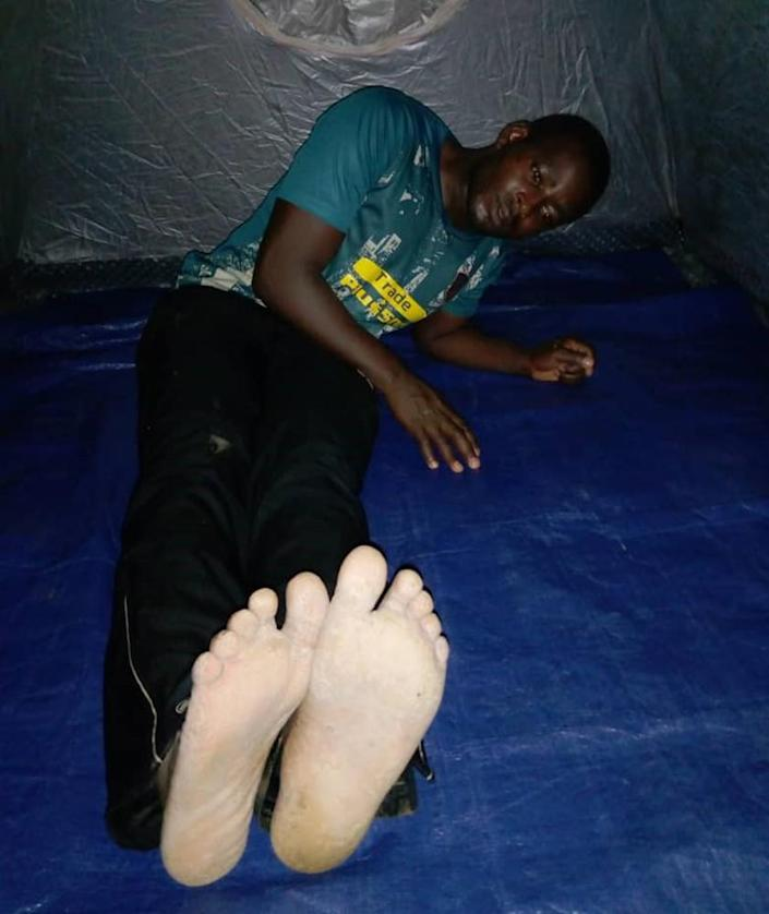 Image; Justice Bantar after he was beaten on the bottom of the feet in Cameroon. (Courtesy Justice Bantar)