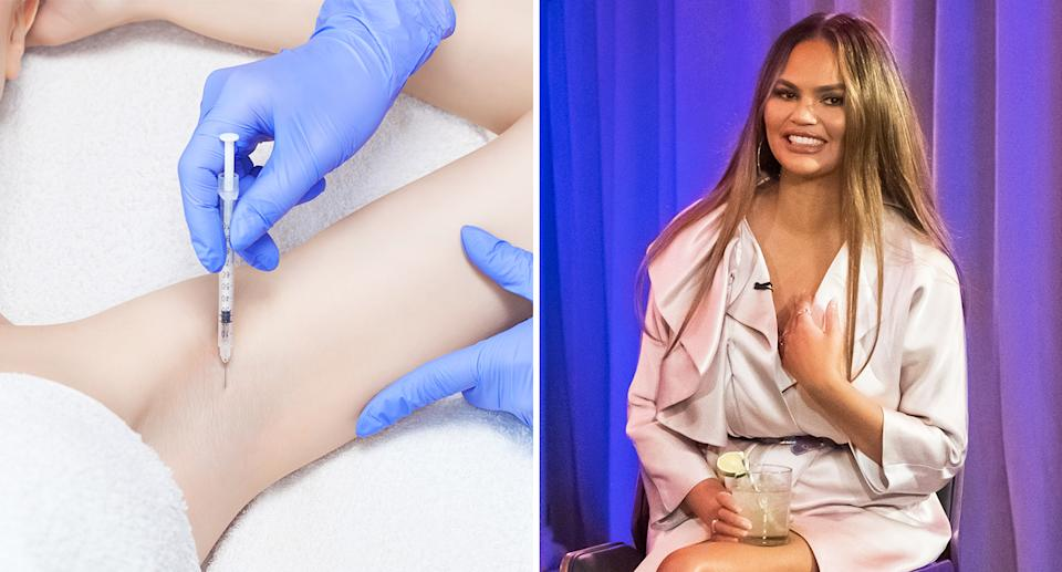 """Armpit Botox: Getting """"sweating injections"""" like Chrissy Teigen could make sweat marks a thing of the past. [Photo: Getty]"""