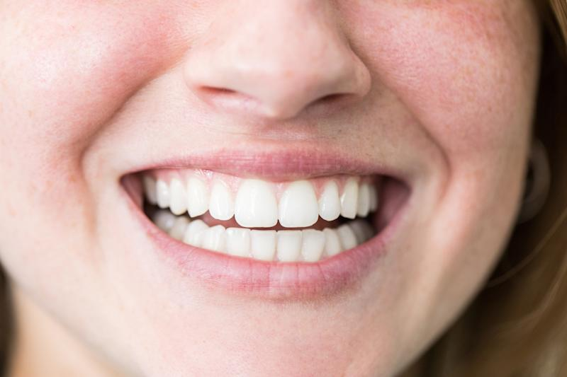 Un excellent blanchiment des dents en vente est certainement quelque chose à sourire. (Photo: Getty)