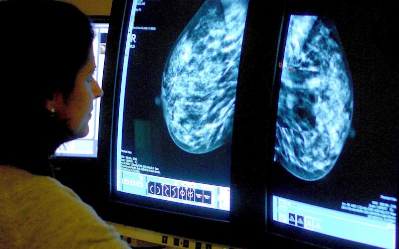 A consultant analysing a mammogram - PA
