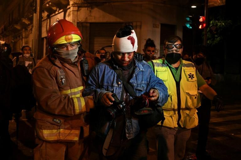 Police arrested more than 20 people and almost 50 were sent to hospital injured, one of them in a serious condition