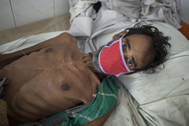 A 55-year-old tuberculosis patient in Bangladesh in 2016. It isestimated that 75 million people will die of multidrug-resistant TB by 2050. (Probal Rashid / LightRocket via Getty Images)