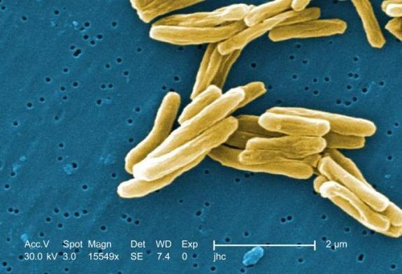 Revolutionary New Antibiotic Kills Drug-Resistant Germs