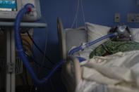 FILE - In this Jan. 7, 2021, file photo, a COVID-19 patient is put on a ventilator at St. Joseph Hospital in Orange, Calif. The U.S. death toll from COVID-19 has almost topped 500,000 — a number so staggering that a top health researchers says it is hard to imagine an American who hasn't lost a relative or doesn't know someone who died. (AP Photo/Jae C. Hong, File)