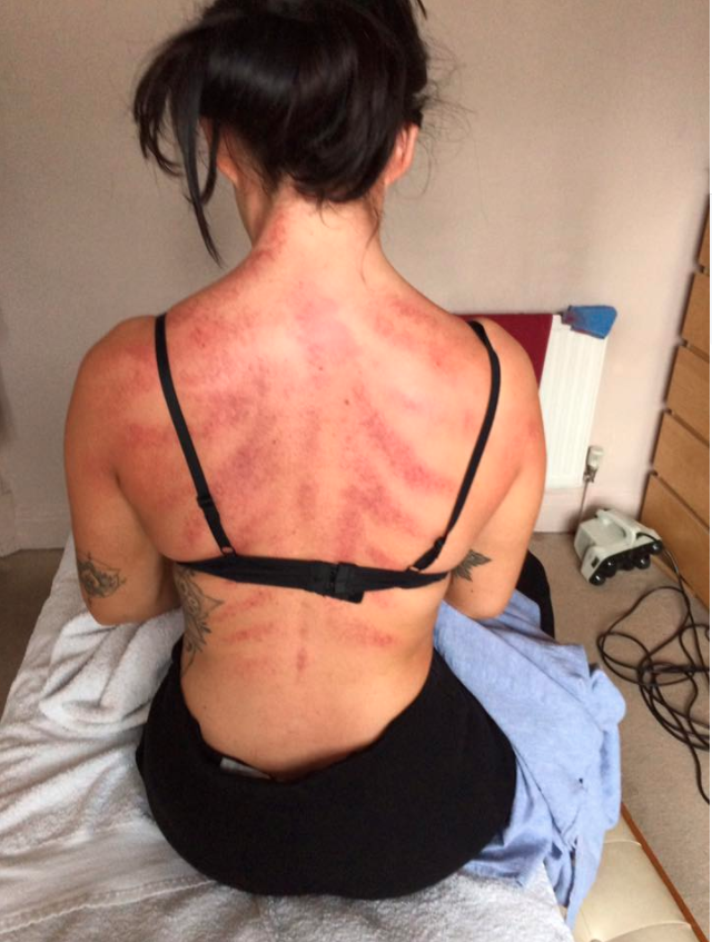 This is the impact a hairdresser's job has on her back. Photo: Facebook