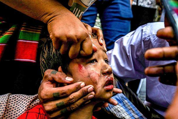 PHOTO: Adults tend to a bruised child who was hit by a slingshot fired by soldiers  during an anti-coup demonstration in Mandalay, Myanmar, Feb. 2, 2021. People sustained injuries when Myanmar security forces shot at anti-military coup protesters. (SOPA Images/LightRocket via Getty Images, FILE)