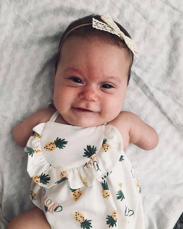baby born without arms