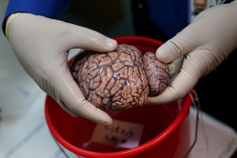 FILE PHOTO: Dr. Vahram Haroutunian holds a human brain in a brain bank in the Bronx borough of New York City