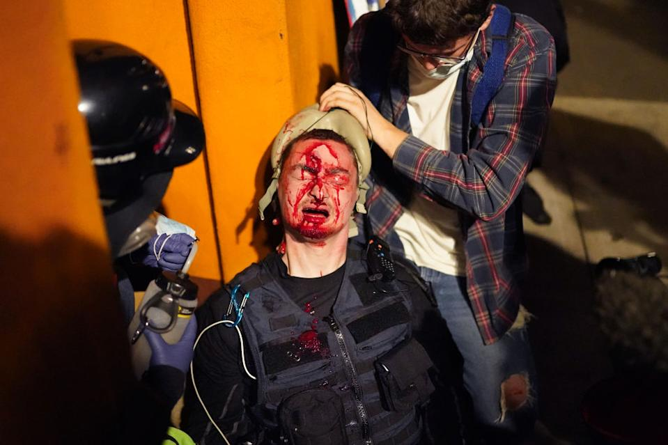 Street medics tend to a protester after federal police fired a crowd control munition into his forehead. Source: Getty
