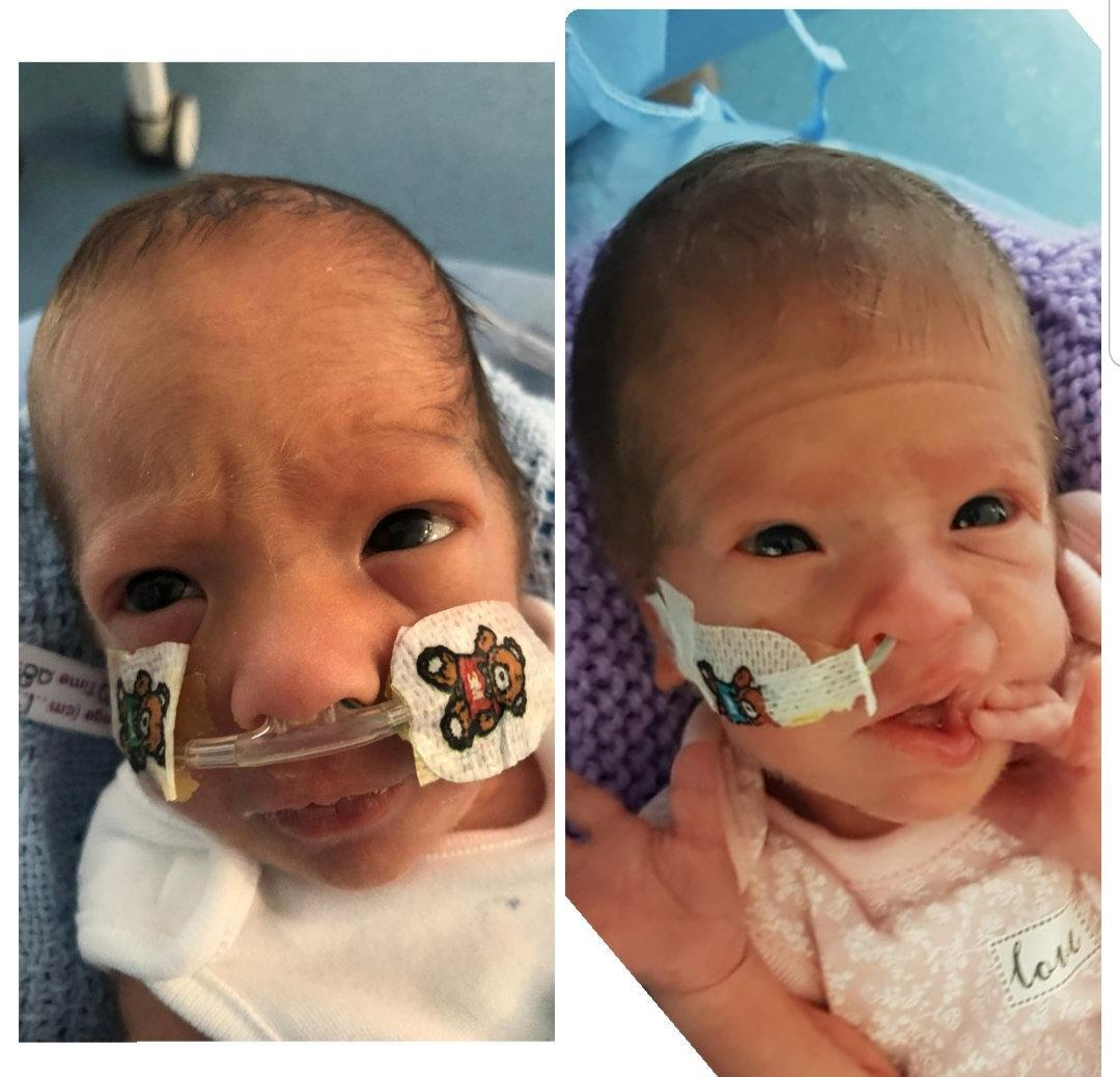Zaki and Malika Ridge - who turn one on Saturday - arrived on 17 July 2020 at Luton and Dunstable University Hospital, Bedfordshire, weighing 2lbs 10oz and 2lbs 5oz respectively