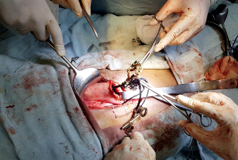 Doctors in the city of Udaipur in the state of Rajasthan, India, were astounded to see over 80 metallic and other foreign objects lodged in the abdomen and intestine of a 24-year-old man. (SWNS)