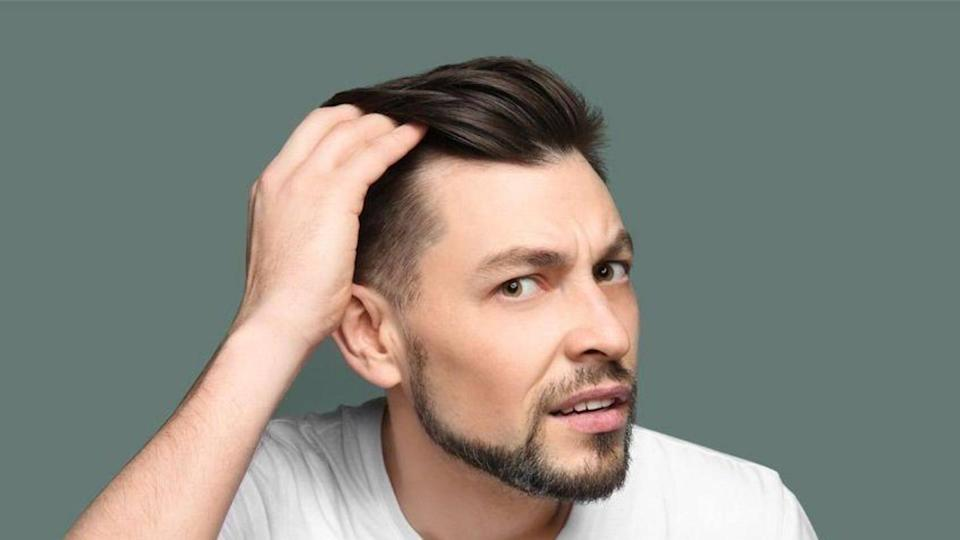 Going bald? Some effective ways to stop a receding hairline