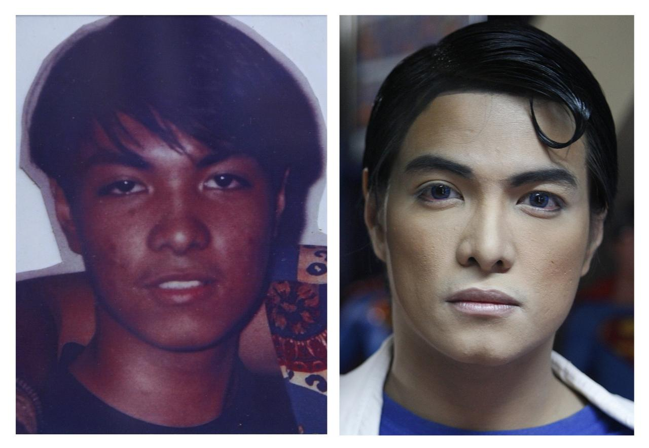 "A combination photo shows Herbert Chavez before and after his cosmetic transformation to look more like the comic book character Superman in Calamba Laguna, south of Manila October 12, 2011. In his idolization of the superhero, Chavez, a self-professed ""pageant trainer"" who owns two costume stores, has undergone a series of cosmetic surgeries for his nose, cheeks, lips and chin down to his thighs and even his skin color to look more like the ""Man of Steel"". The final result bears little resemblance to his old self. The photo on the left was taken when Chavez was 16. REUTERS/Handout (L) and Cheryl Ravelo (PHILIPPINES - Tags: SOCIETY)"