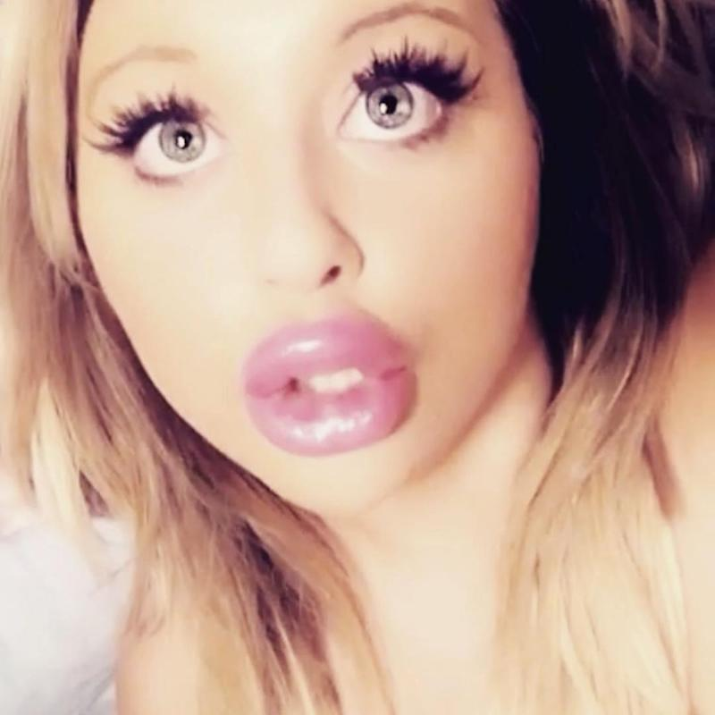 She's spent over $5k on her lips alone. Photo: Australscope