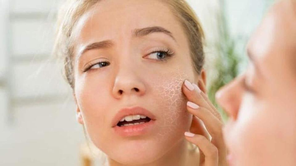 #HealthBytes: How to prevent dry skin during winter