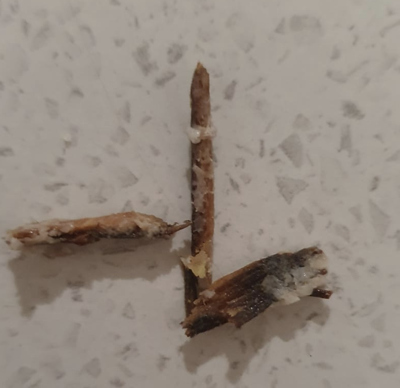 These chunks of wood were lodged inside the five-year-old's schnitzel. Source: Supplied