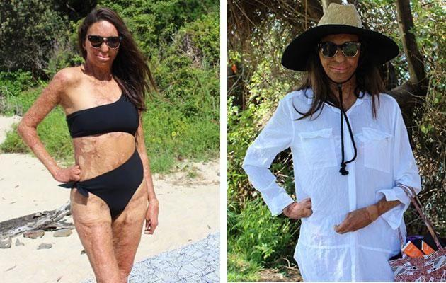 Turia shared this hilarious side-by-side of how we all feel at the beach. Photo: Instagram/Turia Pitt