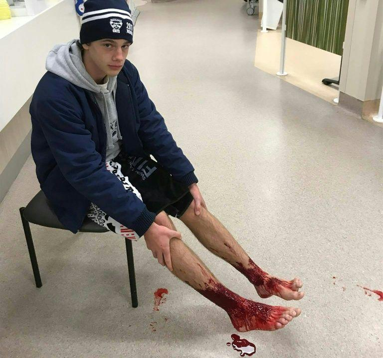 Sam Kanizay with his injured feet waiting for medical aid at a hospital in Melbourne (AFP)