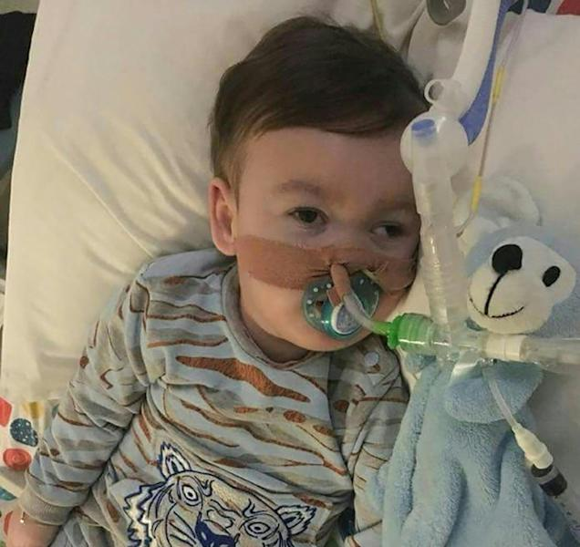 British toddler Alfie Evans suffers from a rare neurological disease