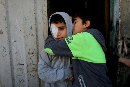 Palestinian boy Mohammad An-Najjar, 12, who was wounded in his eye during a protest at the Israel-Gaza border fence, is hugged by his friend at his family house, in Khan Younis, in the southern Gaza Strip, January 15, 2019. REUTERS/Ibraheem Abu Mustafa