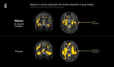 Matter's formulation is the result of the findings of the VITACOG study conducted at the University of Oxford, which demonstrated that supplementation with a specific B-vitamin complex together with a good omega-3 fatty acid status slows grey matter atrophy in regions of the brain that are important for learning and memory by up to 86%.