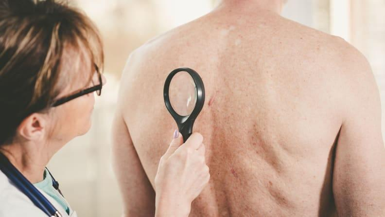 A dermatologist can create a treatment plan for health-related sun damage.