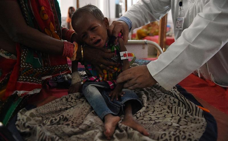 Four-year-old malnourished child Shahadat Hussein cries as he is examined by a doctor at the Nutritional Rehabilitation Centre at Darbhanga Medical College and Hospital in Bihar (AFP Photo/Money Sharma)